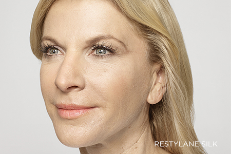 Restylane® Facial Injection Treatments | Centre for Pure Skin